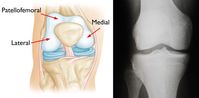 illustration of knee compartments; x-ray of a normal knee