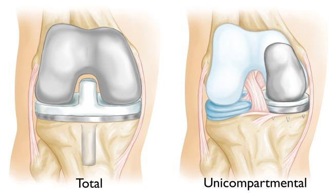 illustrations of total knee replacement and unicompartmental knee replacement