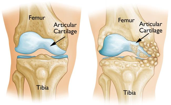 normal knee anatomy and osteoarthritic kneeeoarthritis that has damaged just one side of the knee joint.