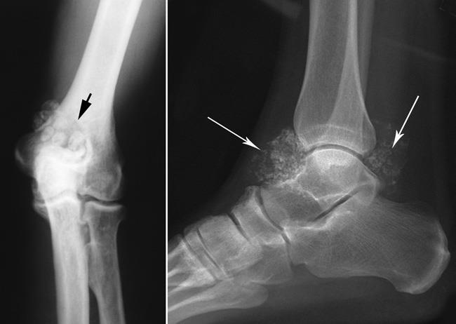 x-rays of synovial chondromatosis in elbow and ankle
