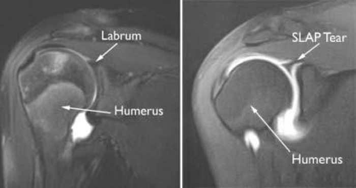 MRI of SLAP tear
