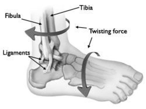 twisting force causing ankle sprain or fracture