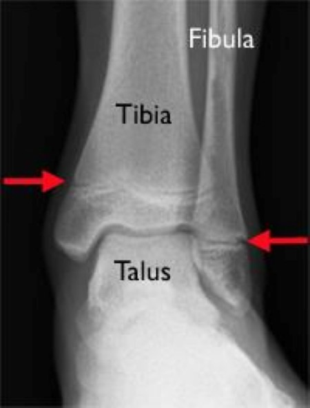 growth plates in ankle