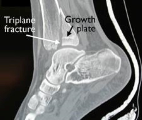 CT scan of triplane fracture