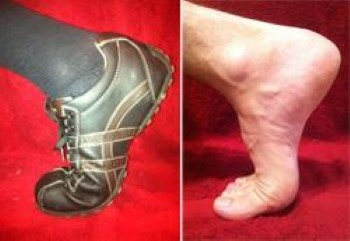 Turf Toe - OrthoInfo - AAOS