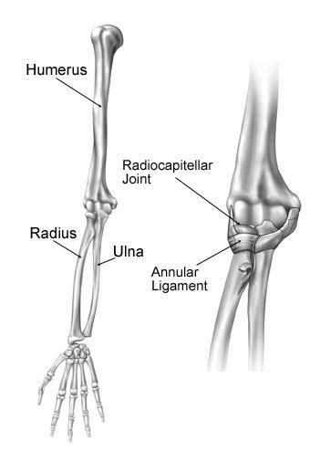Nursemaid's Elbow - OrthoInfo - AAOS