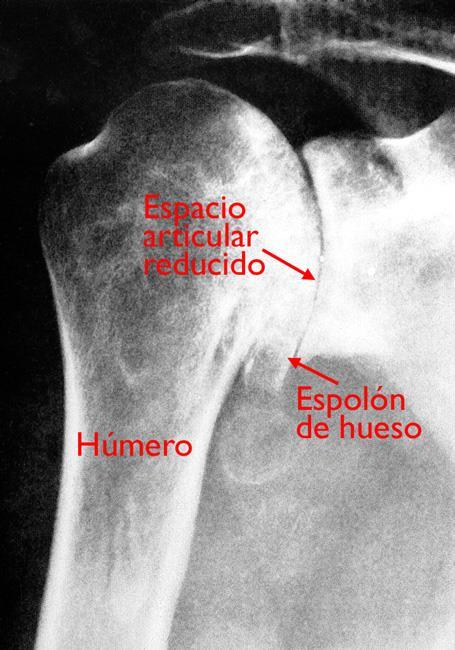 Estos rayos X muestran osteoartritis severa de la articulación glenohumeral.