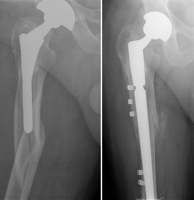 Revision surgery for periprosthetic fracture of the femur